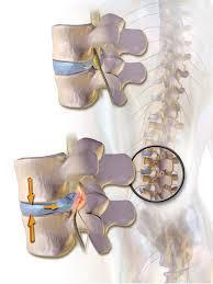 La prise en charge de la hernie discale en ostéopathie