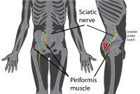 La prise en charge ostéopathique de la sciatique et des sciatalgies.